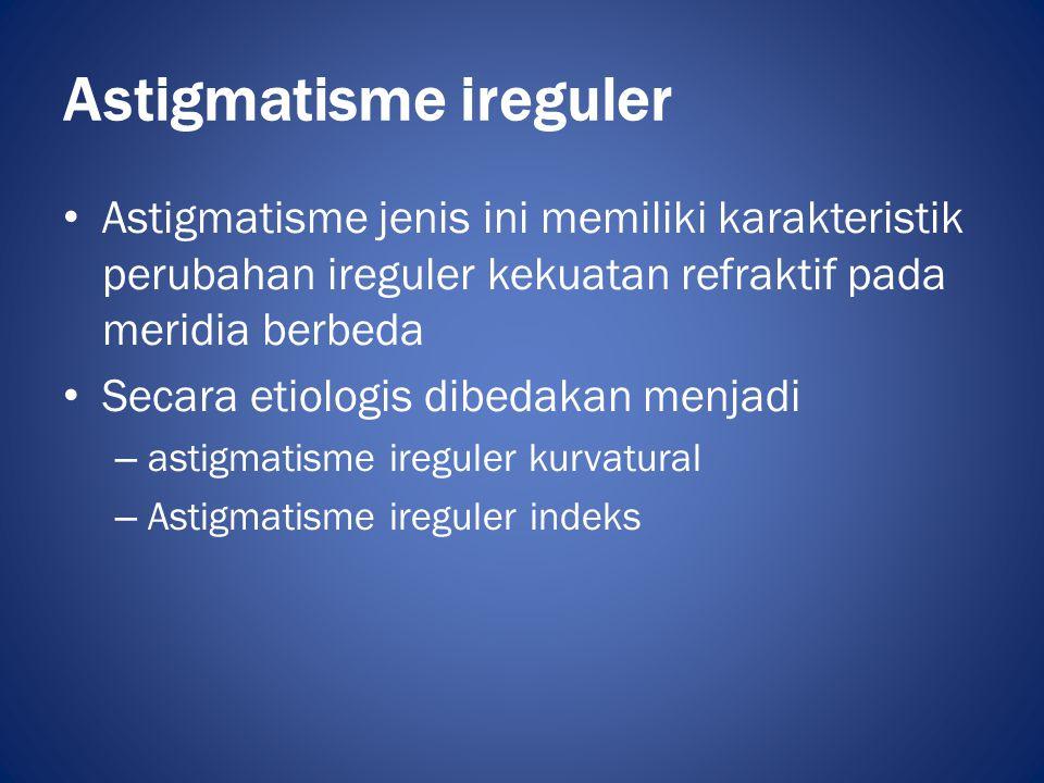 Astigmatisme ireguler