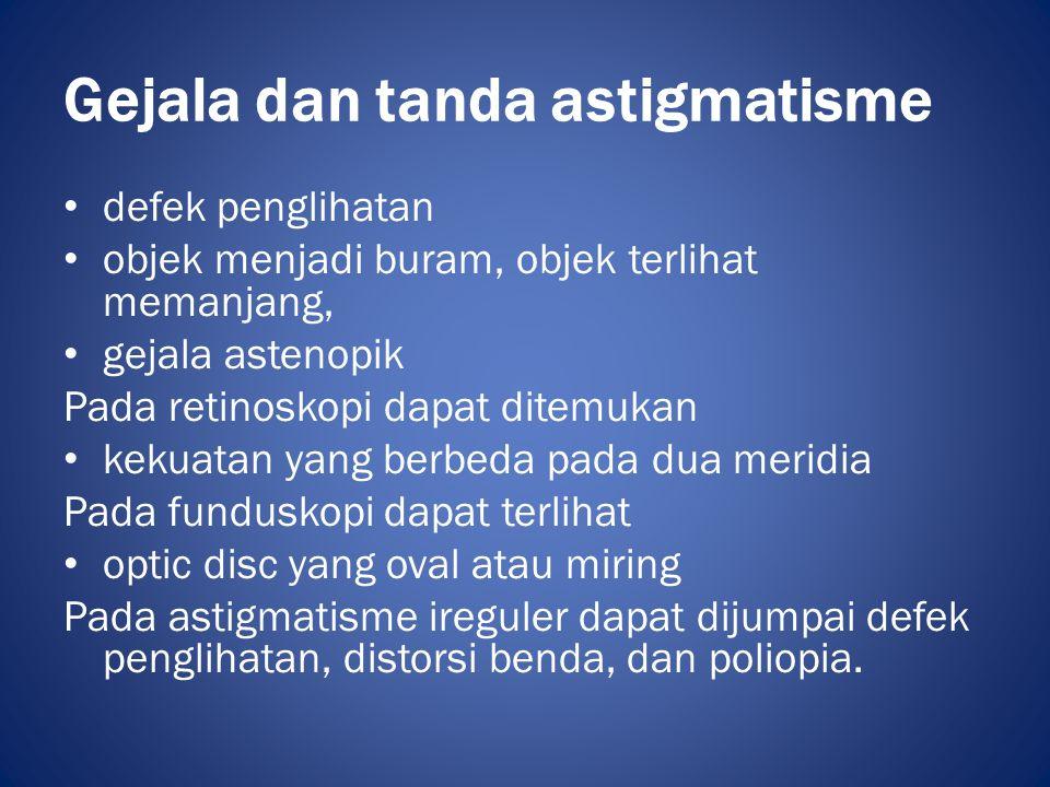 Gejala dan tanda astigmatisme