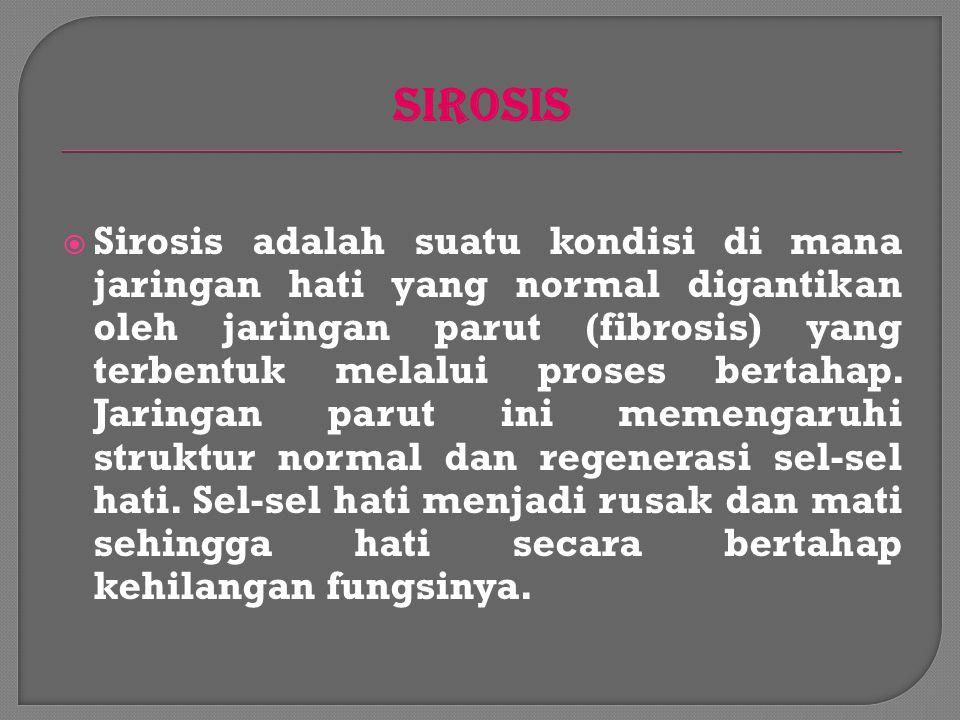 SIROSIS