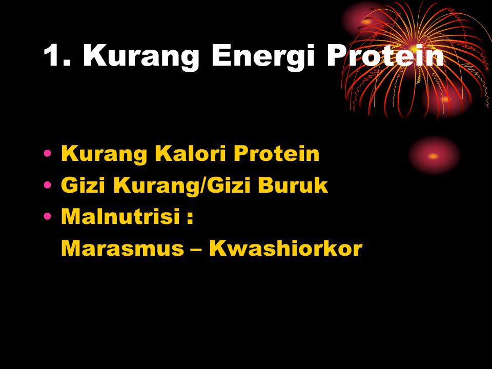 1. Kurang Energi Protein Kurang Kalori Protein Gizi Kurang/Gizi Buruk