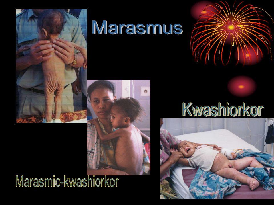 Marasmic-kwashiorkor