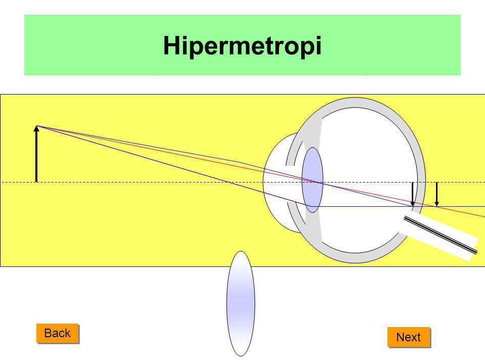 Hipermetropi Back Next