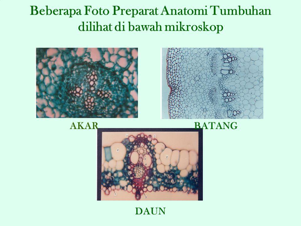 Beberapa Foto Preparat Anatomi Tumbuhan dilihat di bawah mikroskop
