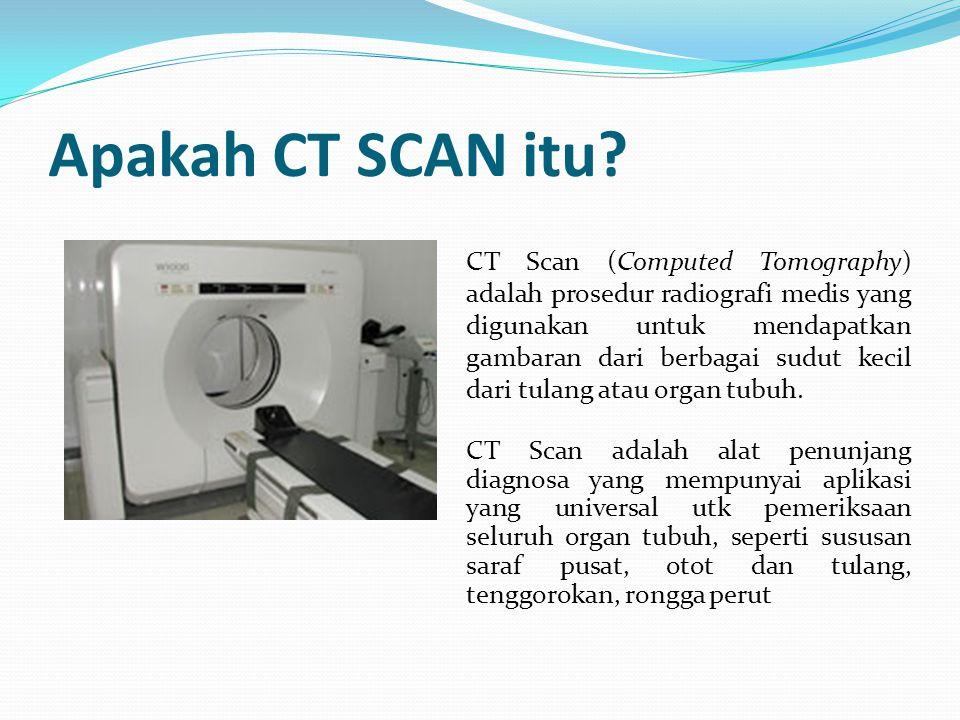Apakah CT SCAN itu