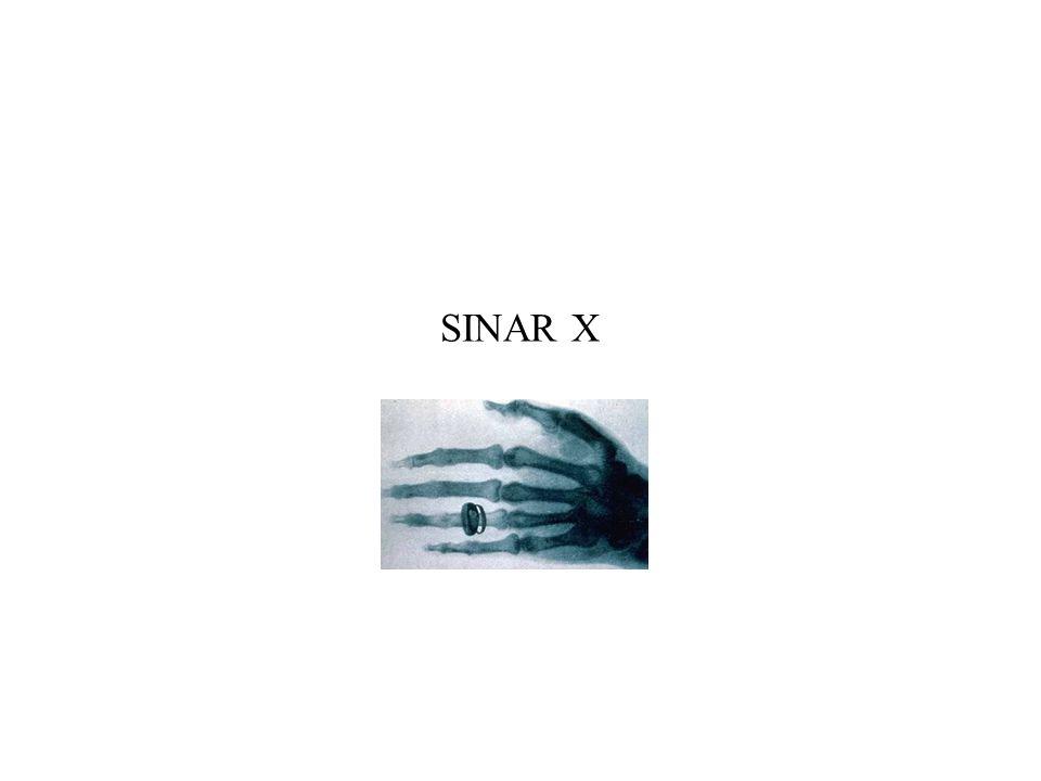 SINAR X
