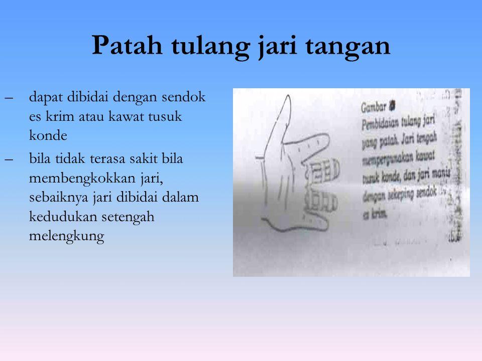 Patah tulang jari tangan