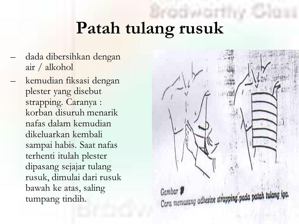Patah tulang rusuk dada dibersihkan dengan air / alkohol