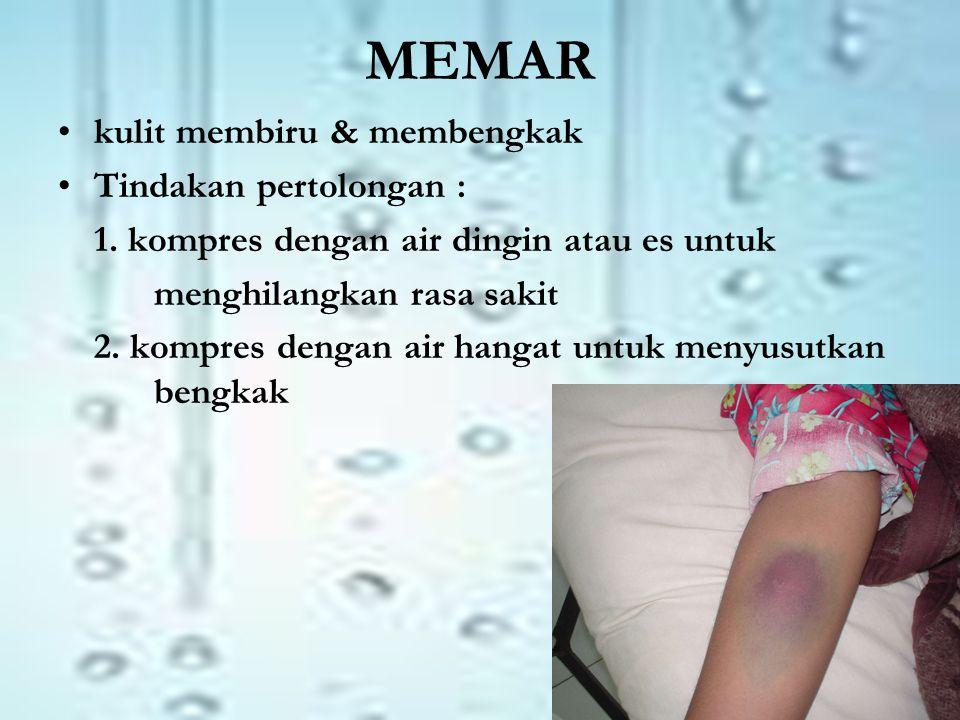 MEMAR kulit membiru & membengkak Tindakan pertolongan :
