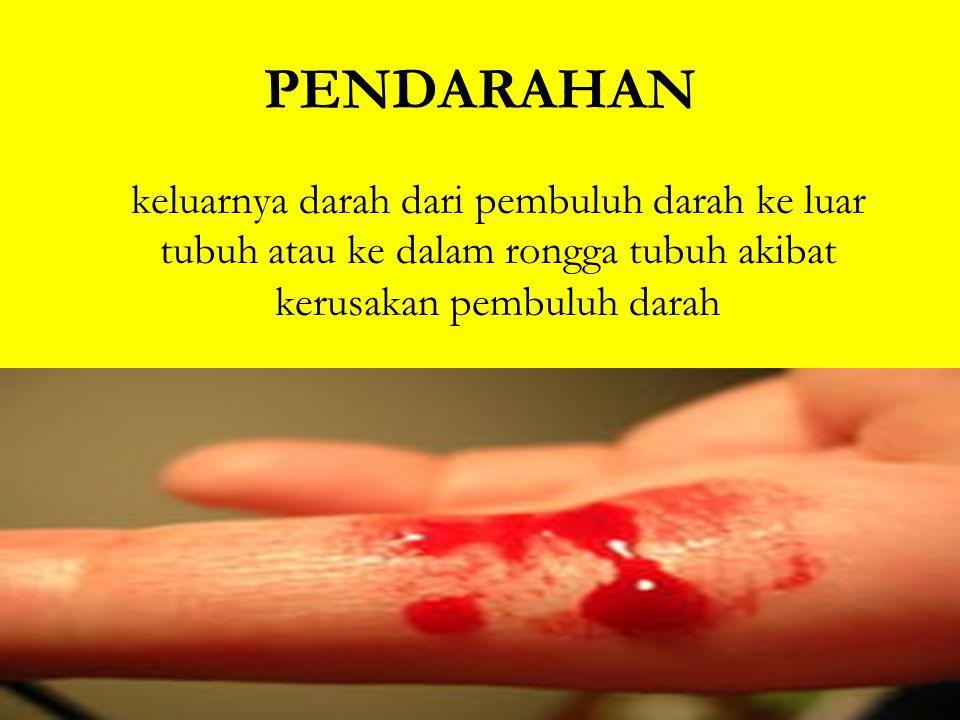 PENDARAHAN keluarnya darah dari pembuluh darah ke luar tubuh atau ke dalam rongga tubuh akibat kerusakan pembuluh darah.