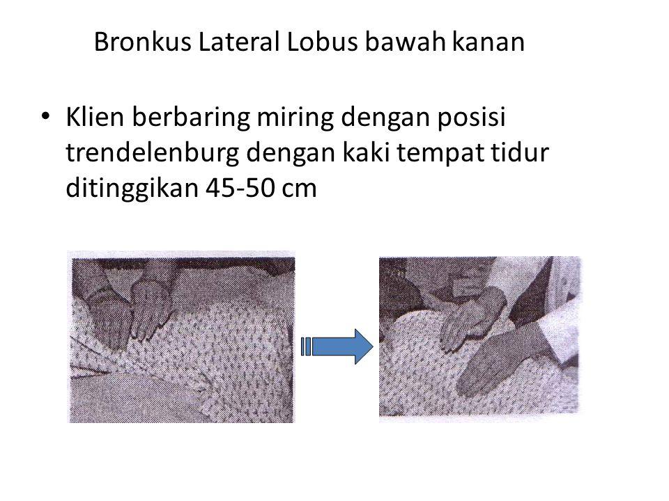 Bronkus Lateral Lobus bawah kanan