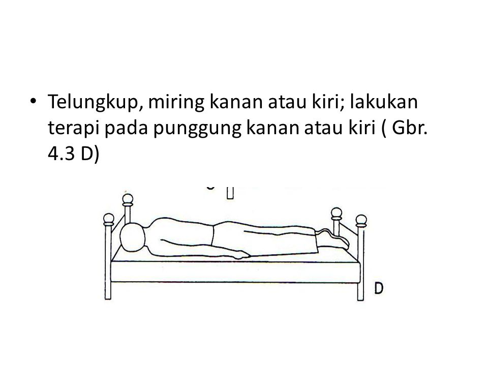 Telungkup, miring kanan atau kiri; lakukan terapi pada punggung kanan atau kiri ( Gbr. 4.3 D)