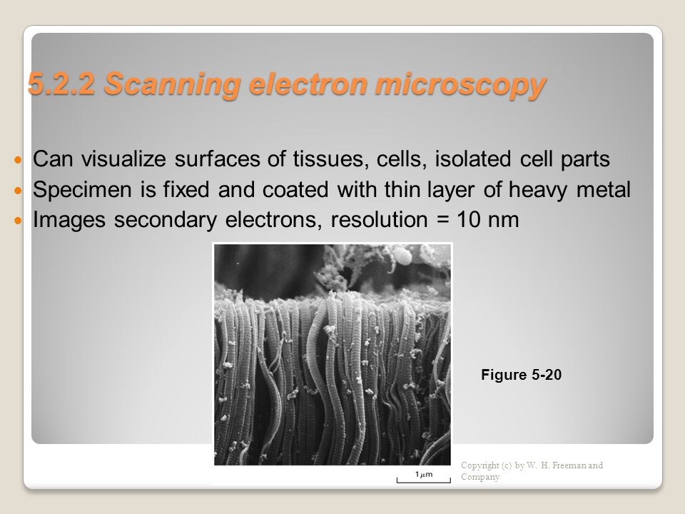 5.2.2 Scanning electron microscopy