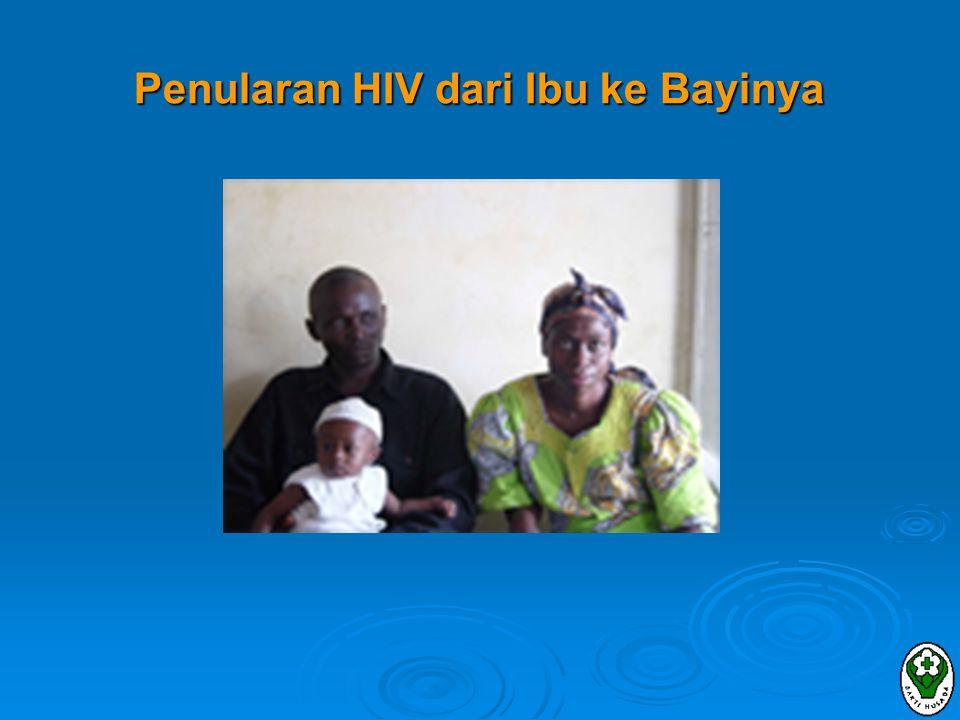 Penularan HIV dari Ibu ke Bayinya