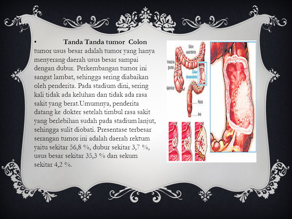 • Tanda Tanda tumor Colon