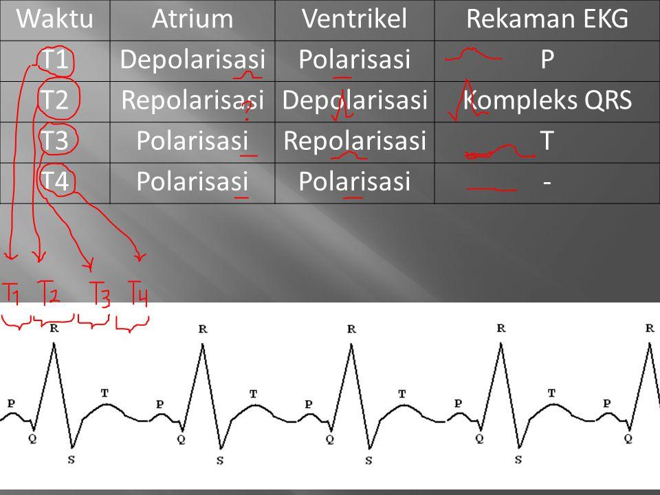 Waktu Atrium. Ventrikel. Rekaman EKG. T1. Depolarisasi. Polarisasi. P. T2. Repolarisasi. Kompleks QRS.