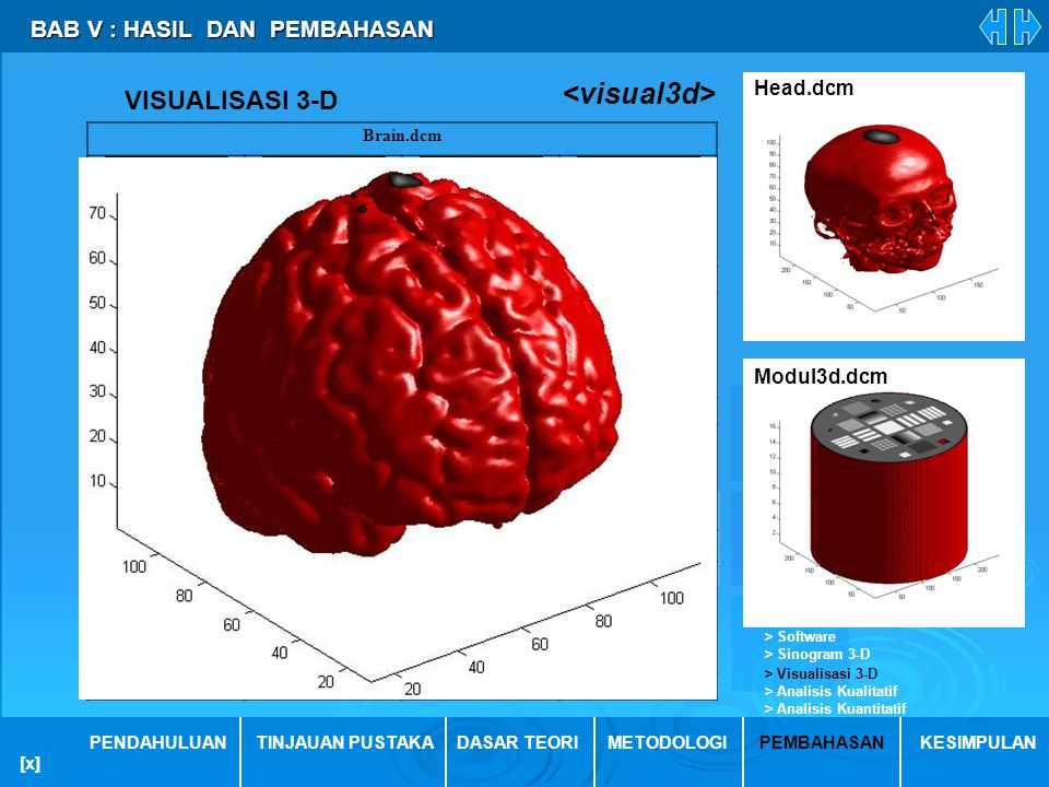 <visual3d> VISUALISASI 3-D BAB V : HASIL DAN PEMBAHASAN Head.dcm