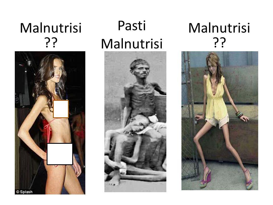 Pasti Malnutrisi Malnutrisi Malnutrisi
