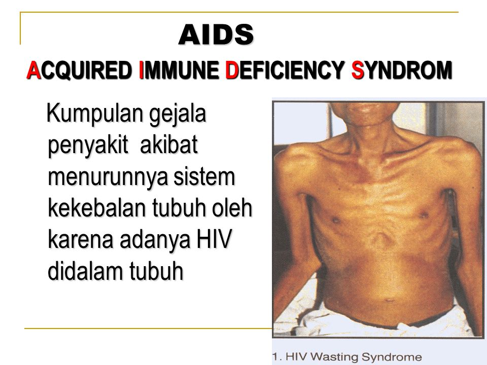 ACQUIRED IMMUNE DEFICIENCY SYNDROM