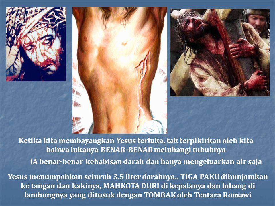 Ketika kita membayangkan Yesus terluka, tak terpikirkan oleh kita bahwa lukanya BENAR-BENAR melubangi tubuhnya