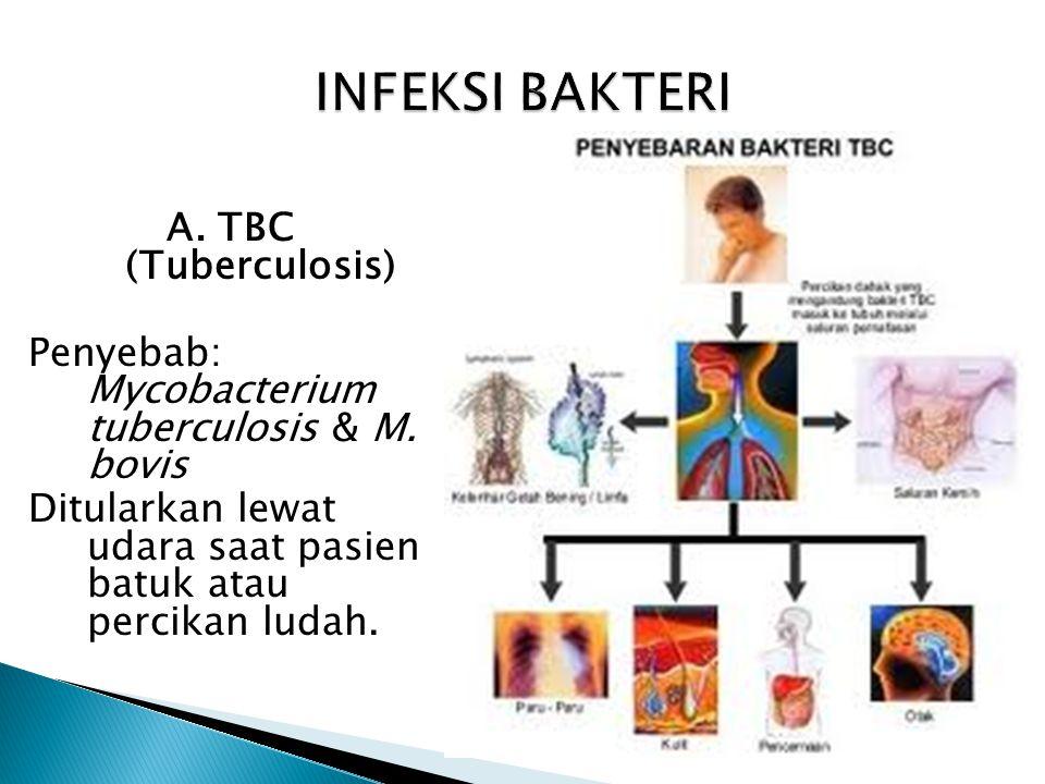 INFEKSI BAKTERI A. TBC (Tuberculosis)