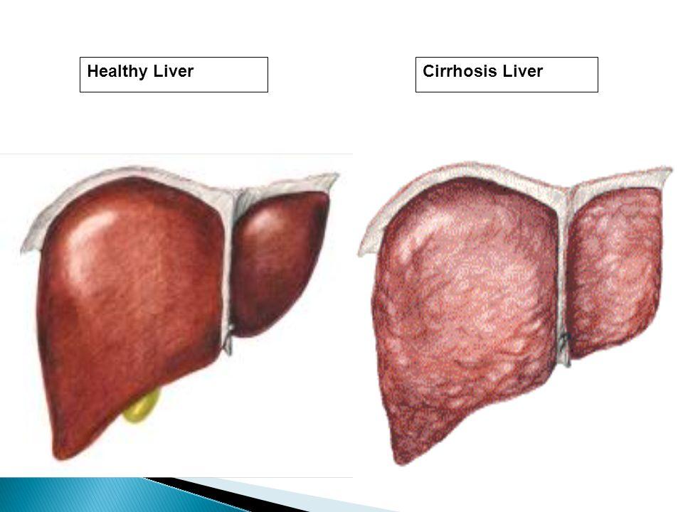 Healthy Liver Cirrhosis Liver