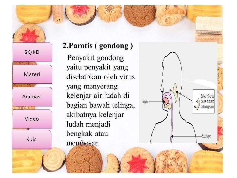 2.Parotis ( gondong )