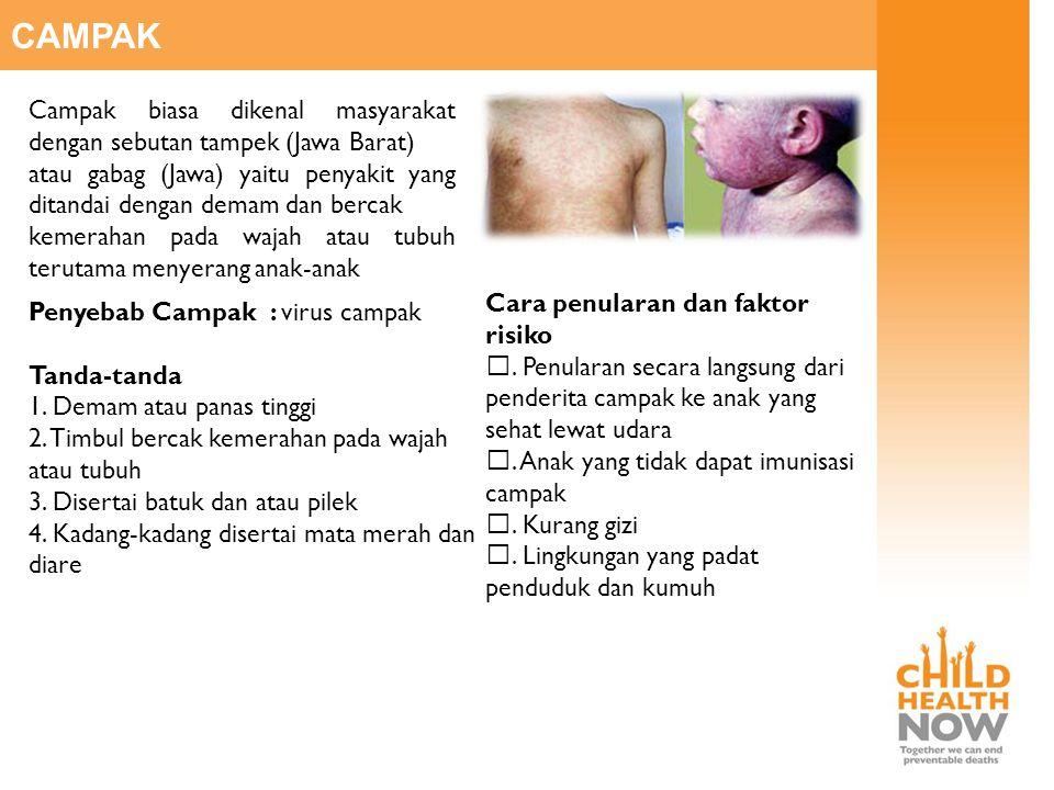 CAMPAK Campak biasa dikenal masyarakat dengan sebutan tampek (Jawa Barat) atau gabag (Jawa) yaitu penyakit yang ditandai dengan demam dan bercak.