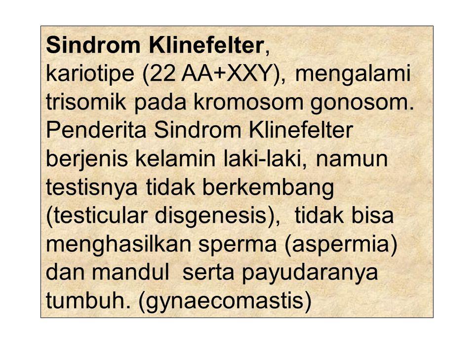 Sindrom Klinefelter,