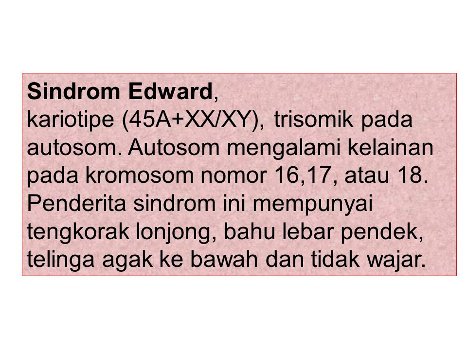 Sindrom Edward,