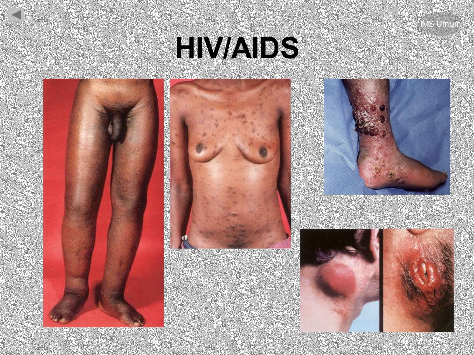 IMS Umum HIV/AIDS