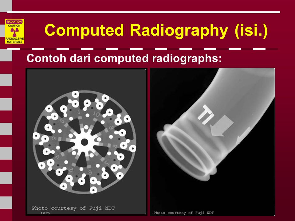 Computed Radiography (isi.)