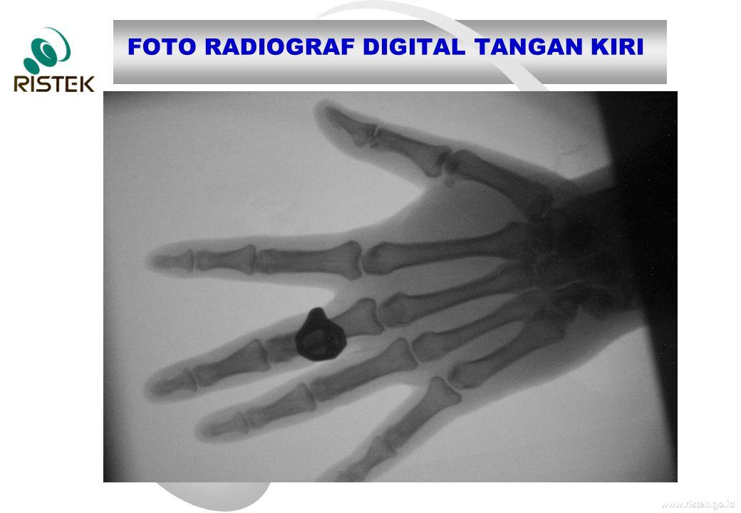 FOTO RADIOGRAF DIGITAL TANGAN KIRI