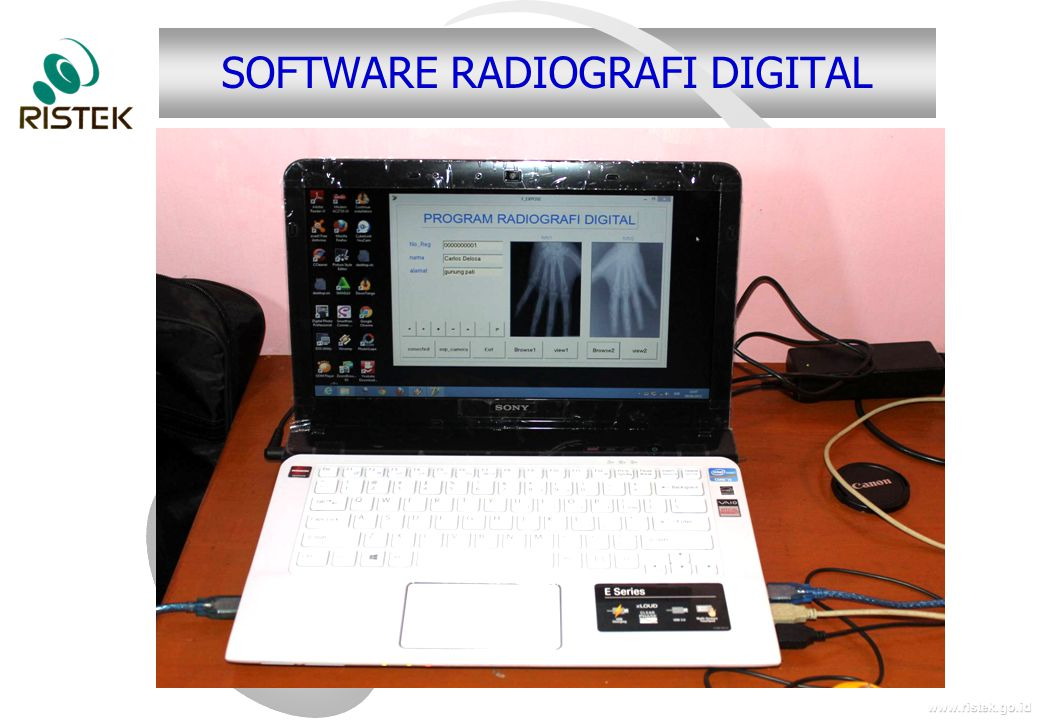 SOFTWARE RADIOGRAFI DIGITAL