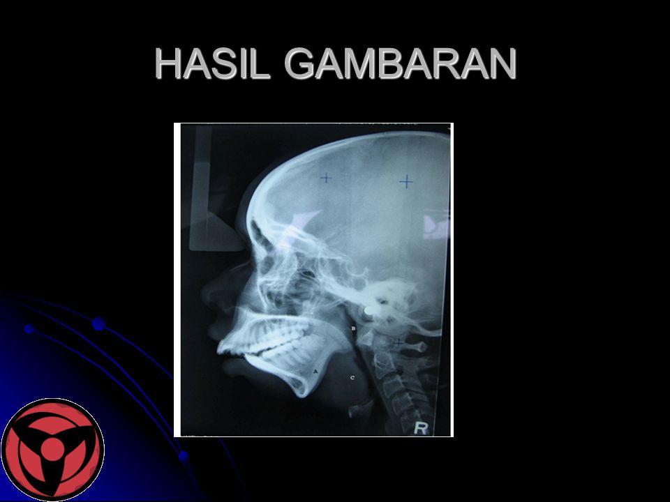HASIL GAMBARAN
