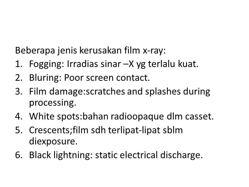 Beberapa jenis kerusakan film x-ray: