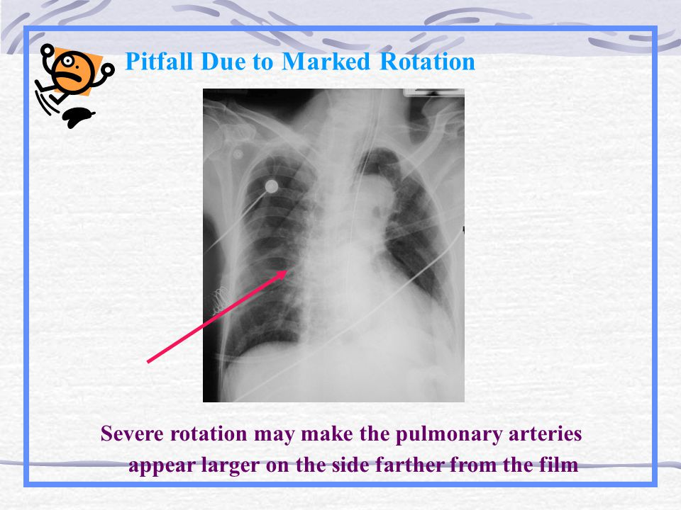 Pitfall Due to Marked Rotation