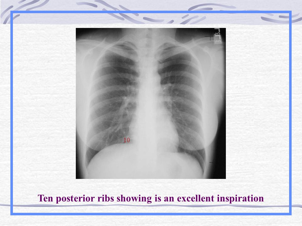 Ten posterior ribs showing is an excellent inspiration