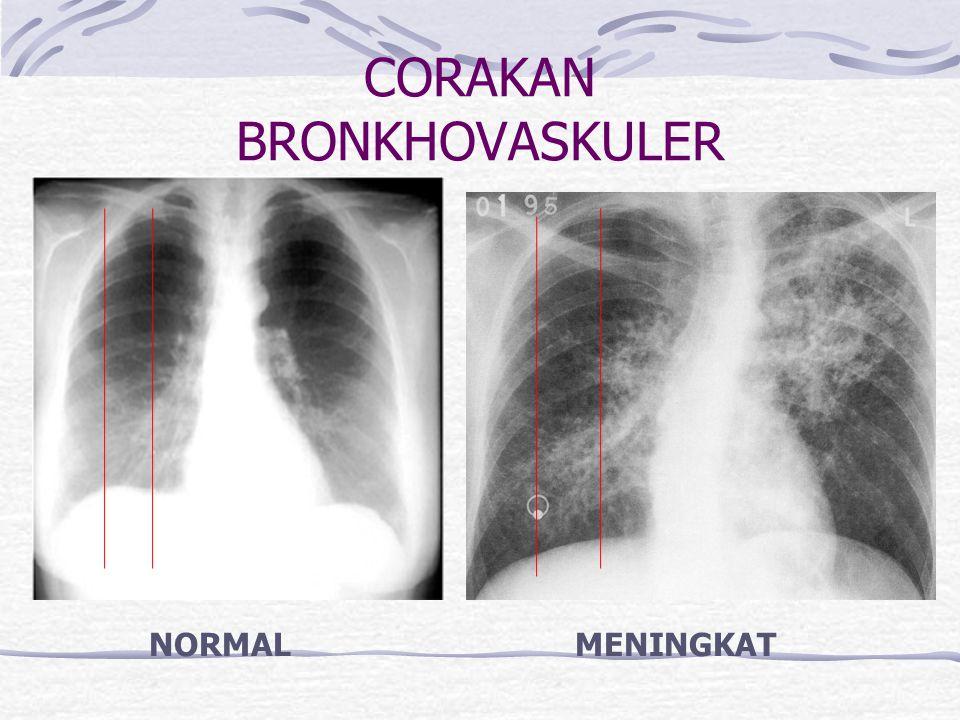 CORAKAN BRONKHOVASKULER