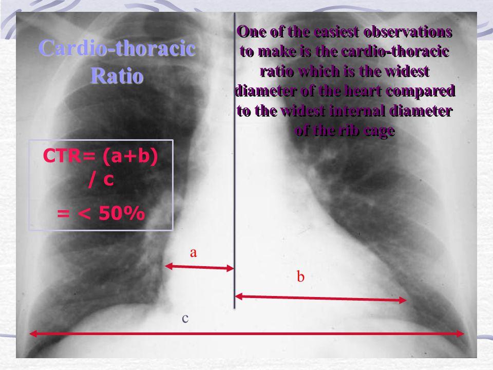Cardio-thoracic Ratio