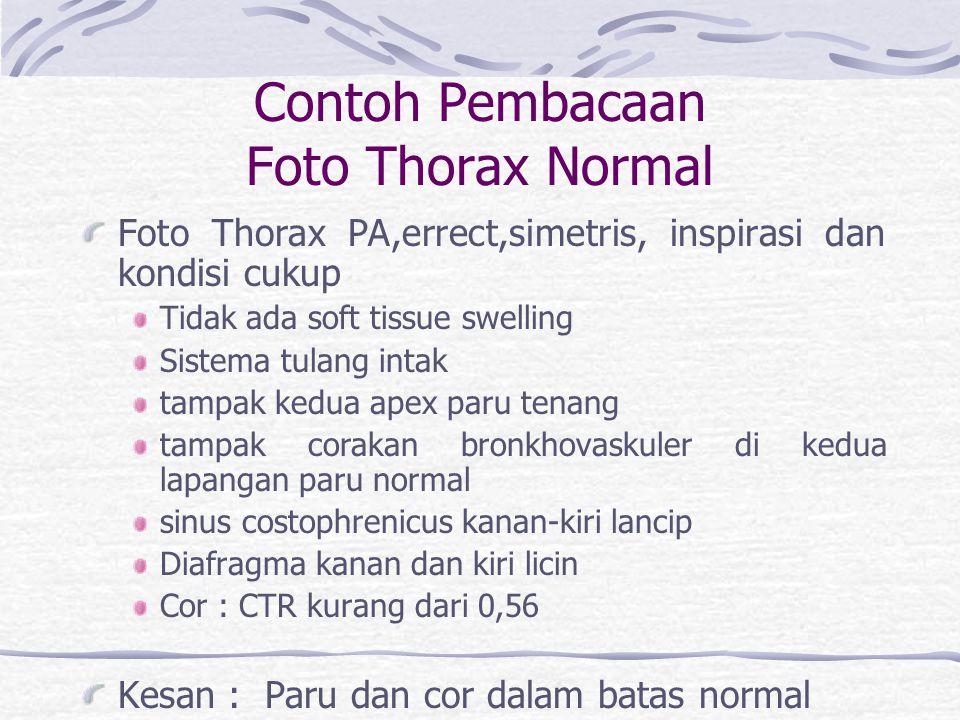Contoh Pembacaan Foto Thorax Normal