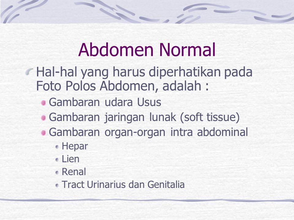 Abdomen Normal Hal-hal yang harus diperhatikan pada Foto Polos Abdomen, adalah : Gambaran udara Usus.