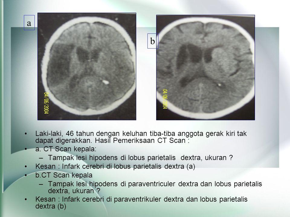 a b. Laki-laki, 46 tahun dengan keluhan tiba-tiba anggota gerak kiri tak dapat digerakkan. Hasil Pemeriksaan CT Scan :