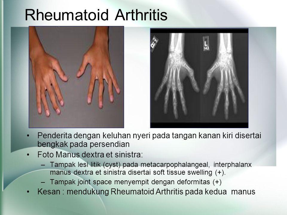 Rheumatoid Arthritis Penderita dengan keluhan nyeri pada tangan kanan kiri disertai bengkak pada persendian.