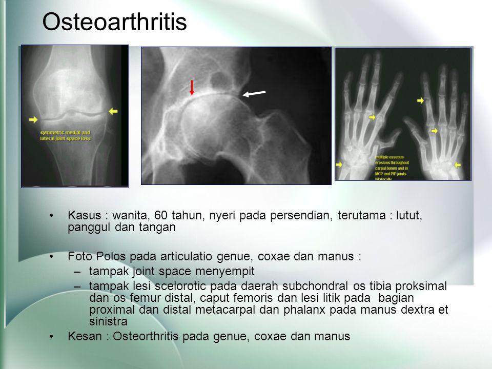 Osteoarthritis Kasus : wanita, 60 tahun, nyeri pada persendian, terutama : lutut, panggul dan tangan.