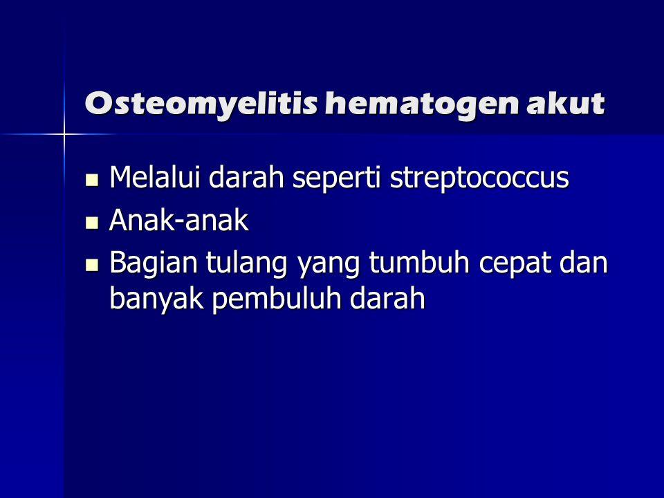 Osteomyelitis hematogen akut