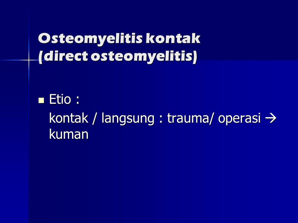 Osteomyelitis kontak (direct osteomyelitis)