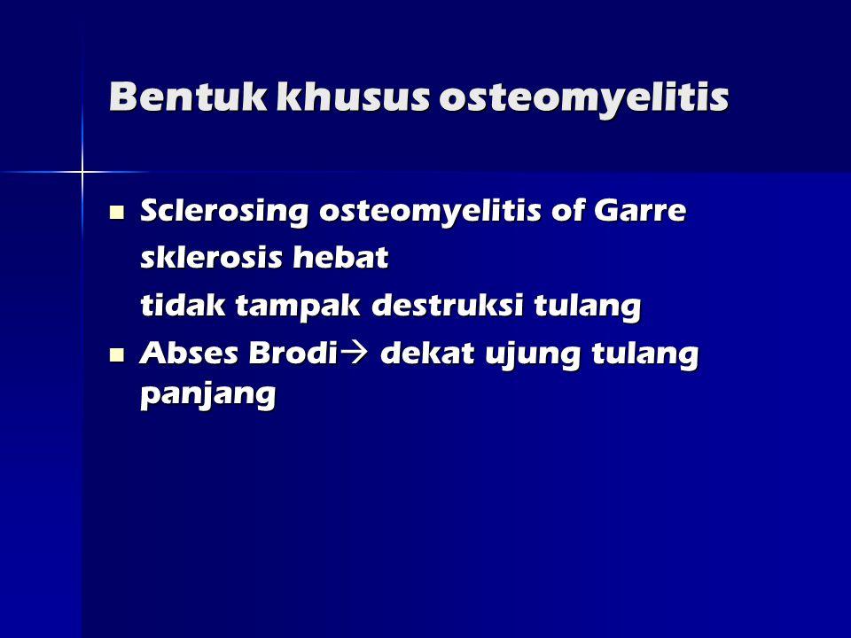 Bentuk khusus osteomyelitis