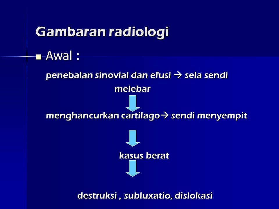 Gambaran radiologi Awal : penebalan sinovial dan efusi  sela sendi