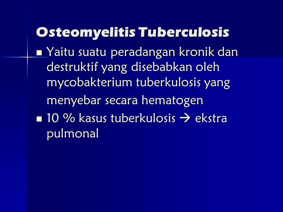Osteomyelitis Tuberculosis