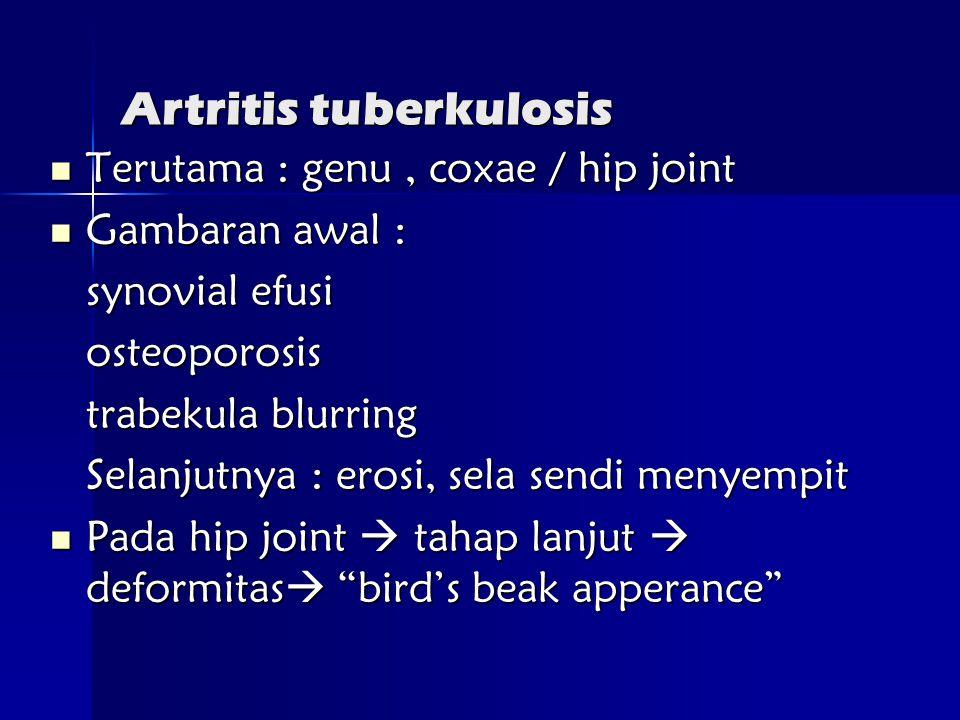Artritis tuberkulosis